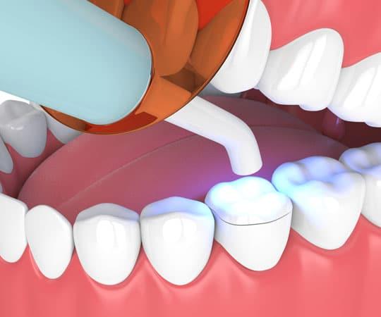 Get same day bonding to improve your dental esthetics and appearance at Bellevue Azalea Denistry