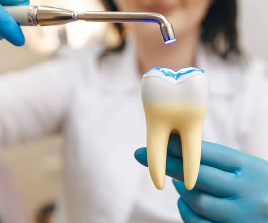 Restore the structure of a tooth having a cavity at Bellevue Azalea Dentistry.