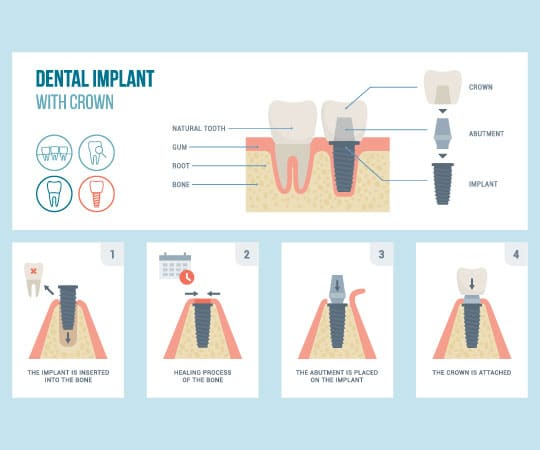 Get a Dental Implant for a missing tooth at Bellevue Azalea Dentistry.