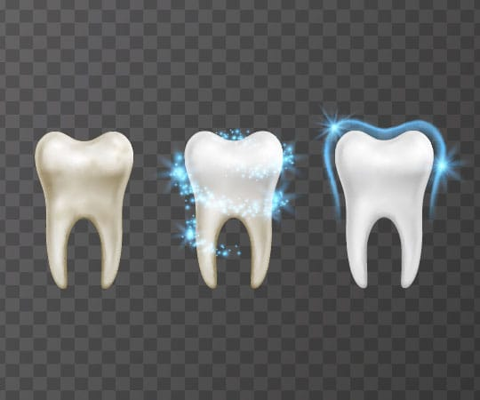 Bellevue Azalea Dentistry offers a Lifetime Teeth Whitening that leads to a lasting white smile.