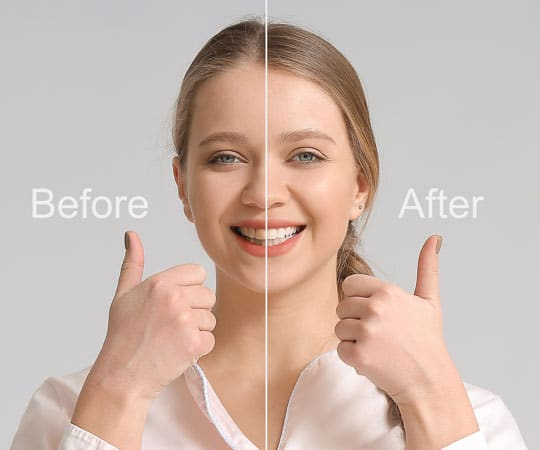 Your smile matters, get smile makeover and we want you to have the most beautiful smile possible, Call Us