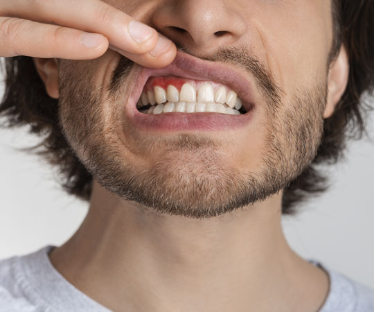 PERIODONTITIS is painful, call Bellevue Azalea Dentistry to book an appointment