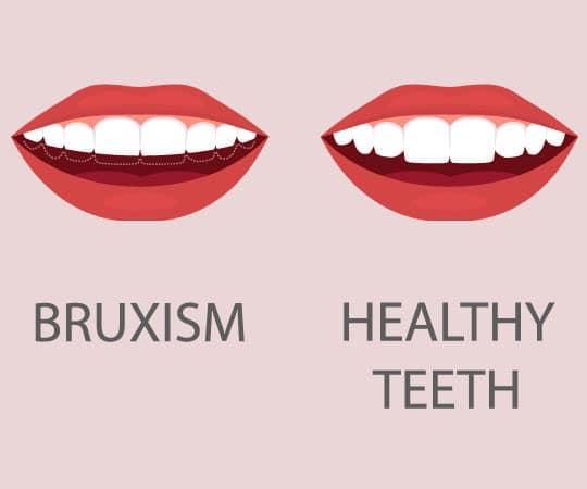 Get teeth grinding guard at Bellevue Azalea Dentistry to prevent bruxism symptoms