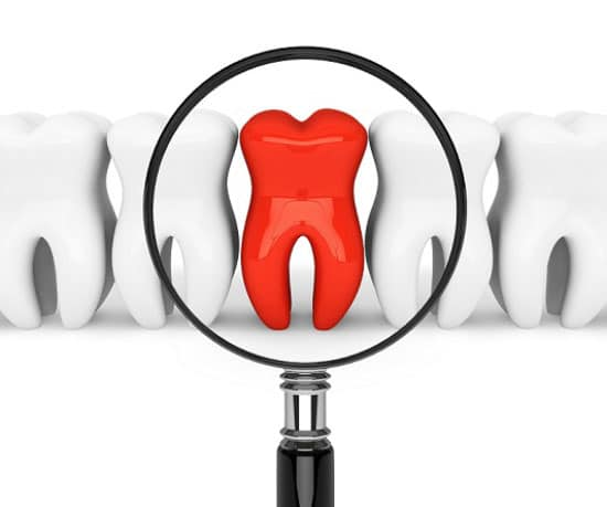 Azalea Dentistry in Bellevue offers Zoom whitening procedure to boost your confidence .