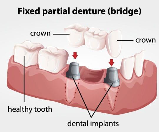 Partial Denture with dental bridge procedure at Bellevue Azalea Dentistry.