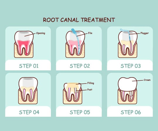 Bellevue Azalea Dentistry provide root canal treatment. Call now!