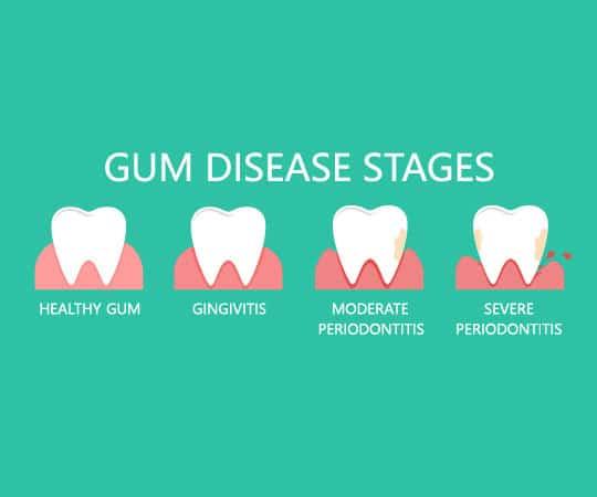 Contact Bellevue Azalea Dentistry if suffering from Gum Disease.