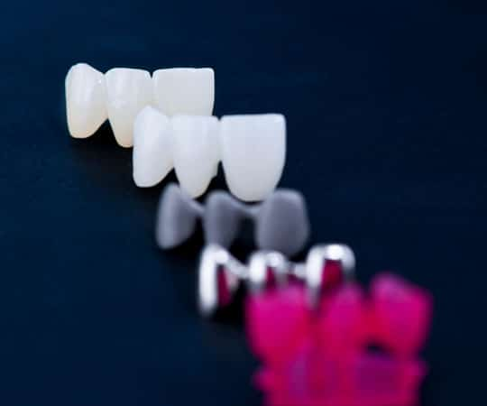 Bellevue Azalea Dentistry offers metal crowns which are a smart option.