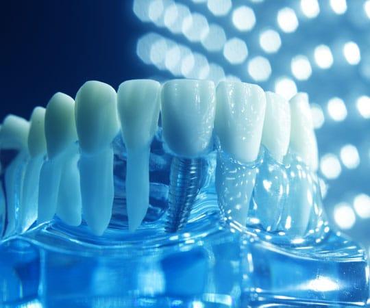Bellevue Azalea provides a variety of dental implants. Call Now.