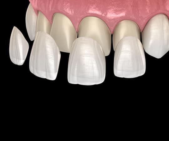 Veneers are a simple, minimally invasive technique we use at Modern Age Dentistry to improve your smile