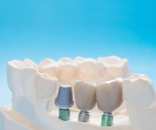 Contact Bellevue Azalea Dentistry to get a bridge for the missing tooth.