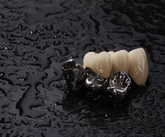 Book your appointment today with Bellevue Azalea Dentistry to know more about metal and Porcelain Dental Crowns.