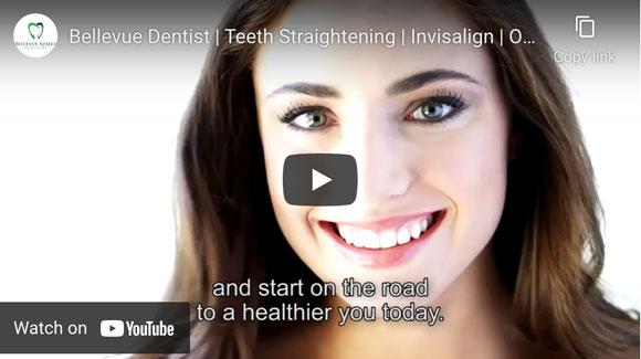Bellevue Dentist Teeth Straightening Invisalign Orthodontics Bellevue Azalea Dentistry