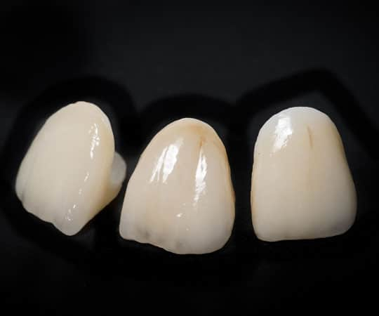 Opt for dental crown instead of filling to keep a cavity tooth for the best shape and health.