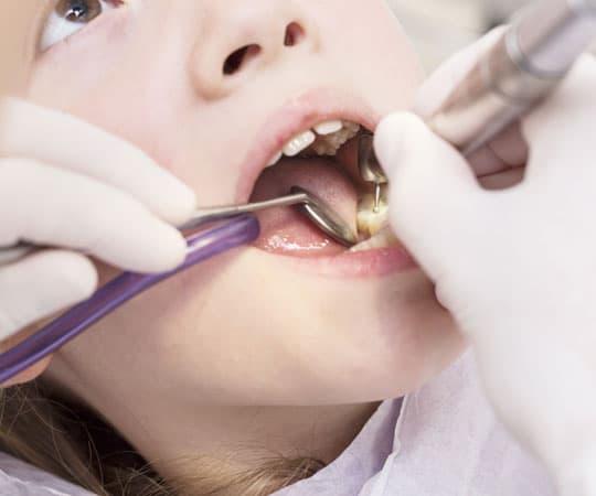 Get a dental sealant from Bellevue Azalea Dentistry for missing teeth.