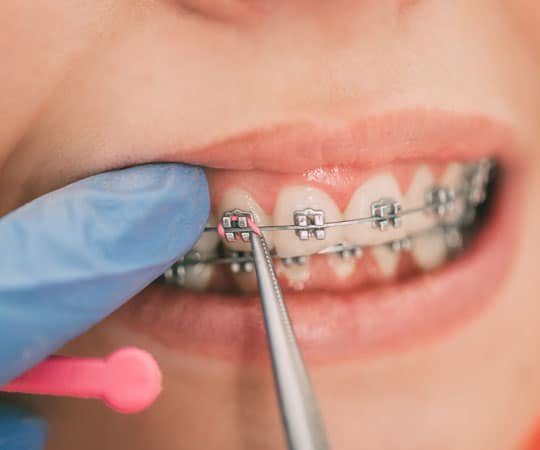 No evidence proves that wearing braces will cause your gums to recede.