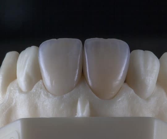 Contact Bellevue Azalea dentistry for dental restorations using dental veneers