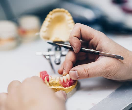 Bellevue Azalea Dentistry explains the pros and cons of Implant Supported Dentures