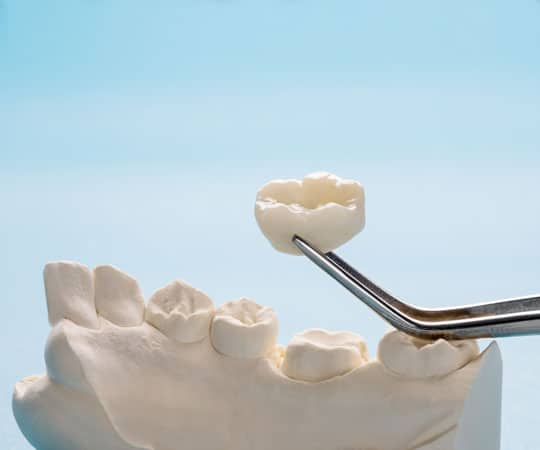 Bellevue Azalea Dentistry offers metal free crown to give strength to back teeth.