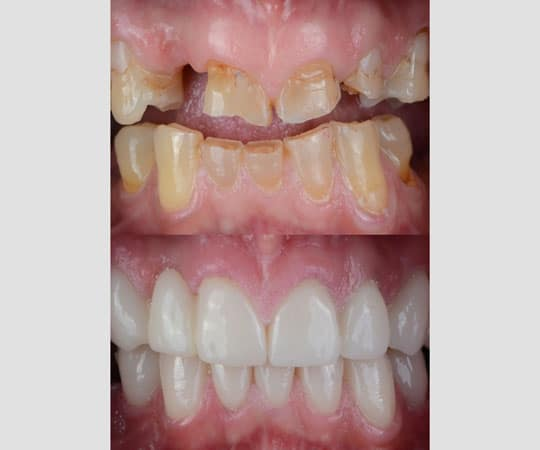 Start your smile makeover with Bellevue Azalea Dentistry with many available options.