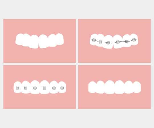 Get a consultation at Bellevue Azalea Dentistry for teeth straightening